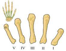 Ospedale San Giovanni, si parla di osteoporosi